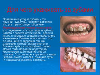 Для чего ухаживать за зубами Правильный уход за зубами - это признак культур...