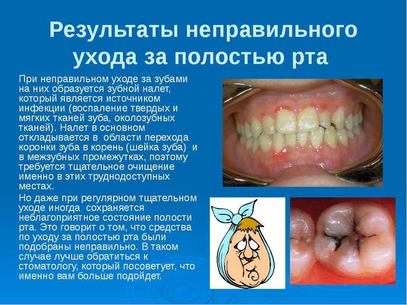 Результаты неправильного ухода за полостью рта При неправильном уходе за зуба...