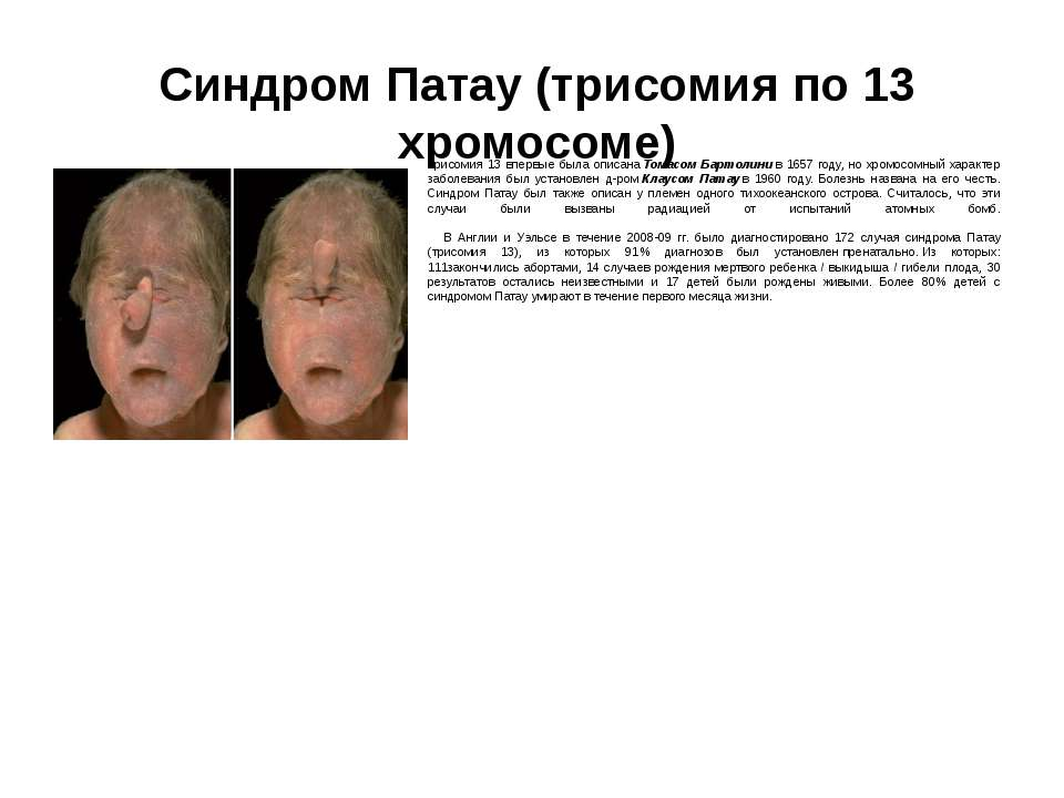 Синдром Патау (трисомия по 13 хромосоме) Трисомия 13 впервые была описанаТом...
