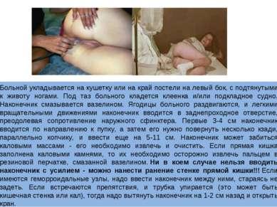 Больной укладывается на кушетку или на край постели на левый бок, с подтянуты...