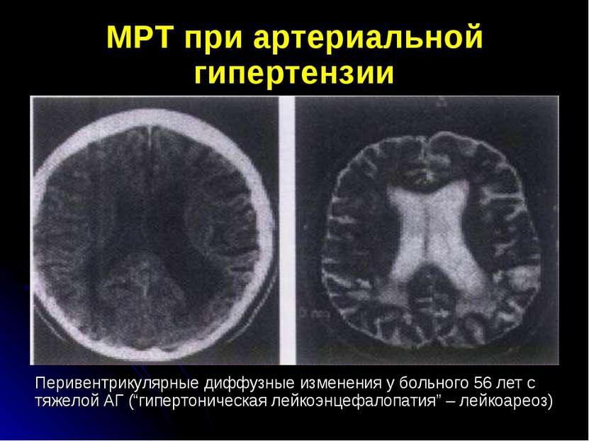 МРТ при артериальной гипертензии Перивентрикулярные диффузные изменения у бол...