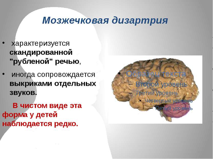 """Мозжечковая дизартрия характеризуется скандированной """"рубленой"""" речью, иногда..."""