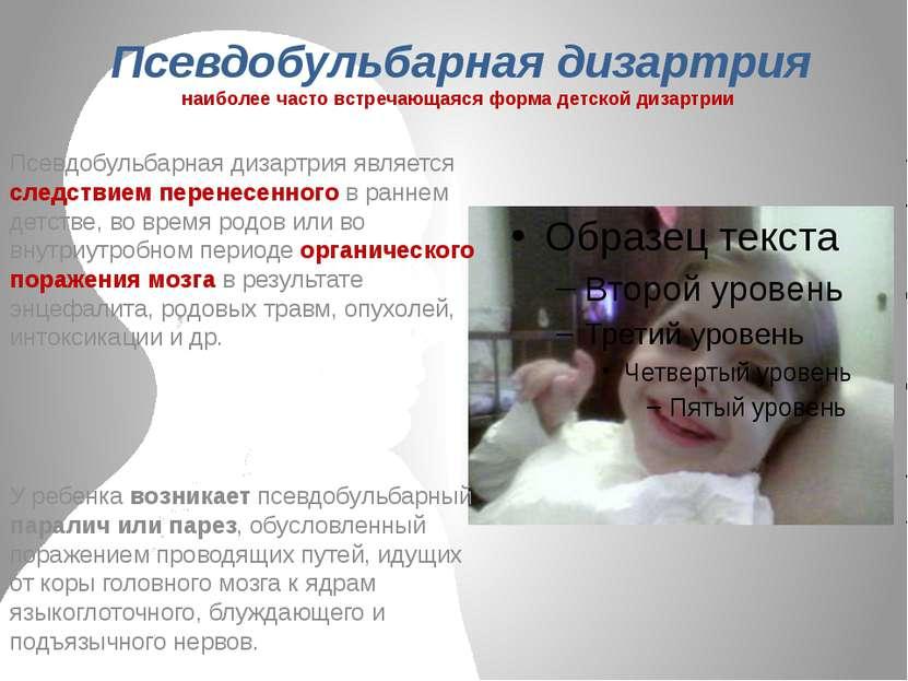 Псевдобульбарная дизартрия наиболее часто встречающаяся форма детской дизартр...