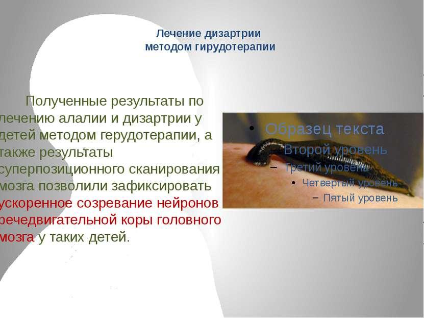 Лечение дизартрии методом гирудотерапии Полученные результаты по лечению алал...