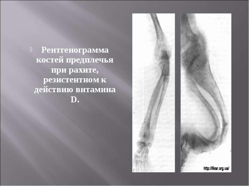 Рентгенограмма костей предплечья при рахите, резистентном к действию витамина D.