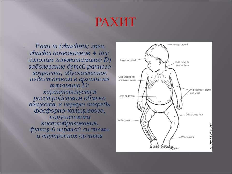 Рахи т (rhachitis; греч. rhachis позвоночник + itis; синоним гиповитаминоз D)...