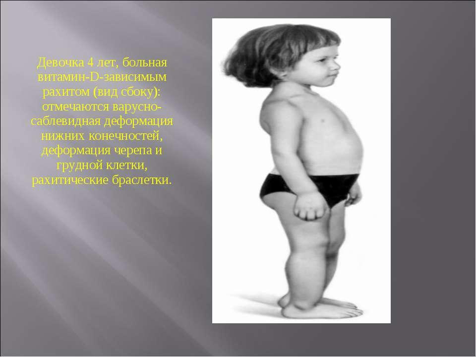 Девочка 4 лет, больная витамин-D-зависимым рахитом (вид сбоку): отмечаются ва...