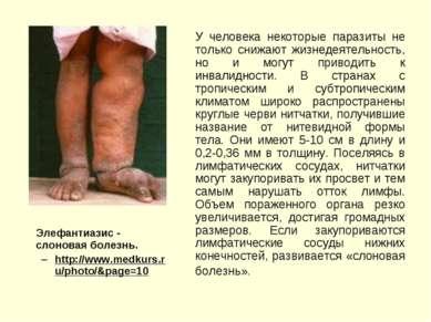 Элефантиазис - cлоновая болезнь. http://www.medkurs.ru/photo/&page=10 У челов...