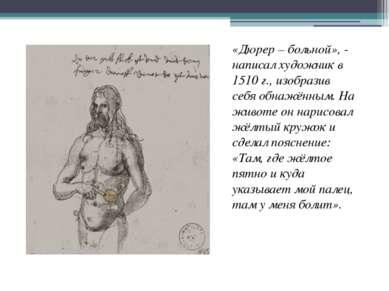 «Дюрер – больной», - написал художник в 1510 г., изобразив себя обнажённым. Н...
