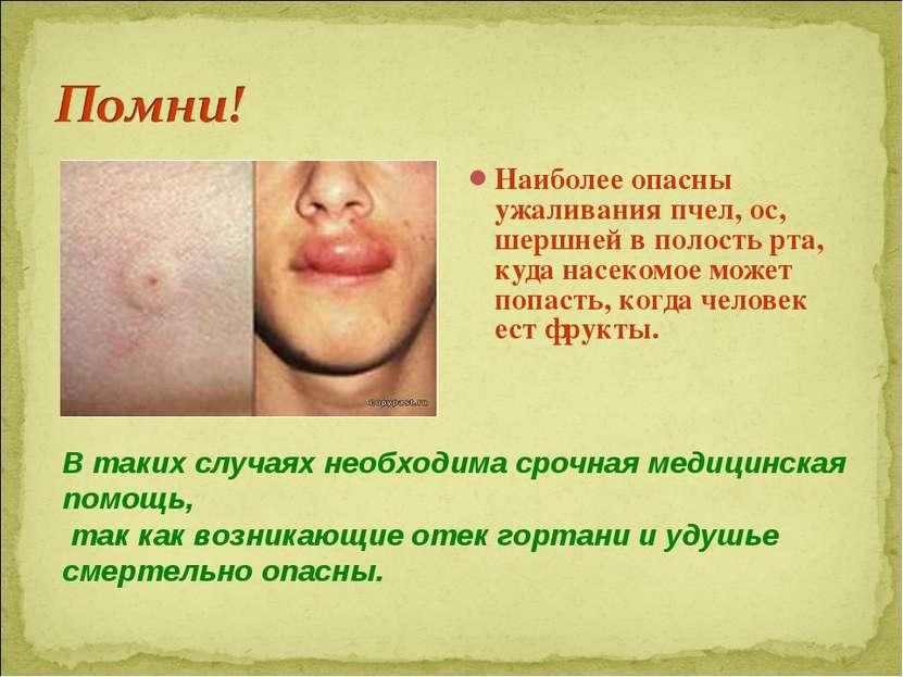 Наиболее опасны ужаливания пчел, ос, шершней в полость рта, куда насекомое мо...