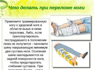 Что делать при переломе ноги Привяжите травмированную ногу к здоровой ноге в...