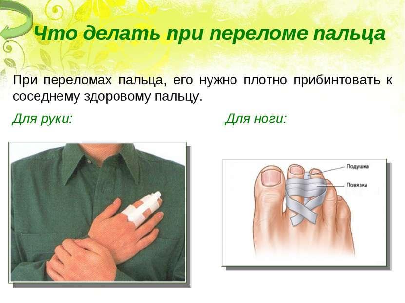 Что делать при переломе пальца При переломах пальца, его нужно плотно прибинт...