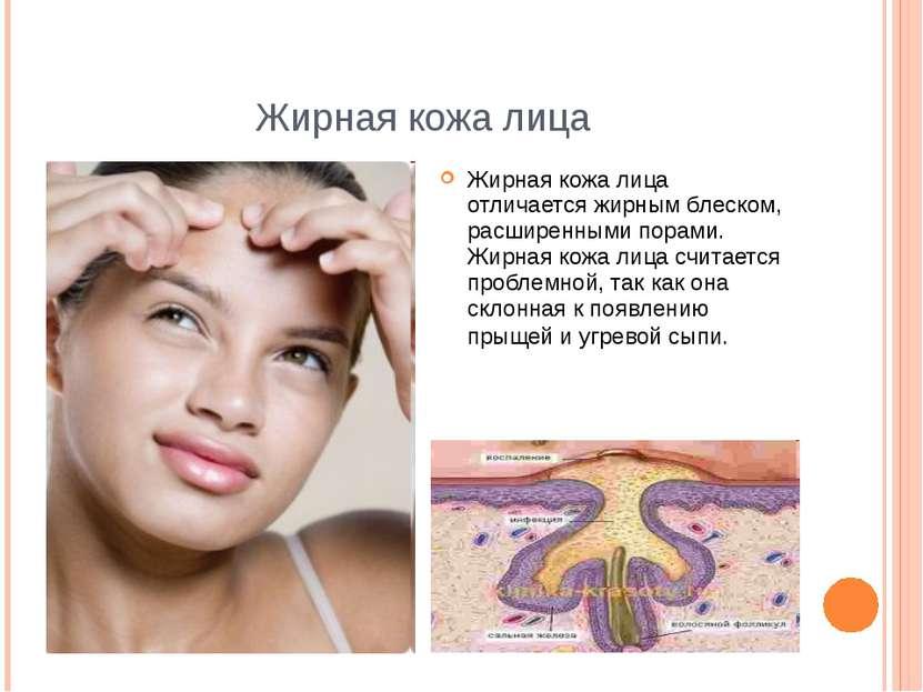 Жирная кожа лица Жирная кожа лица отличается жирным блеском, расширенными пор...