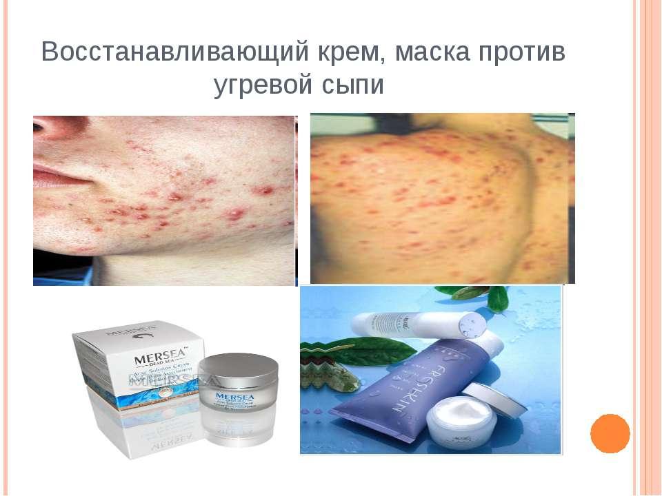 Восстанавливающий крем, маска против угревой сыпи http://www.moi-roditeli.ru/...