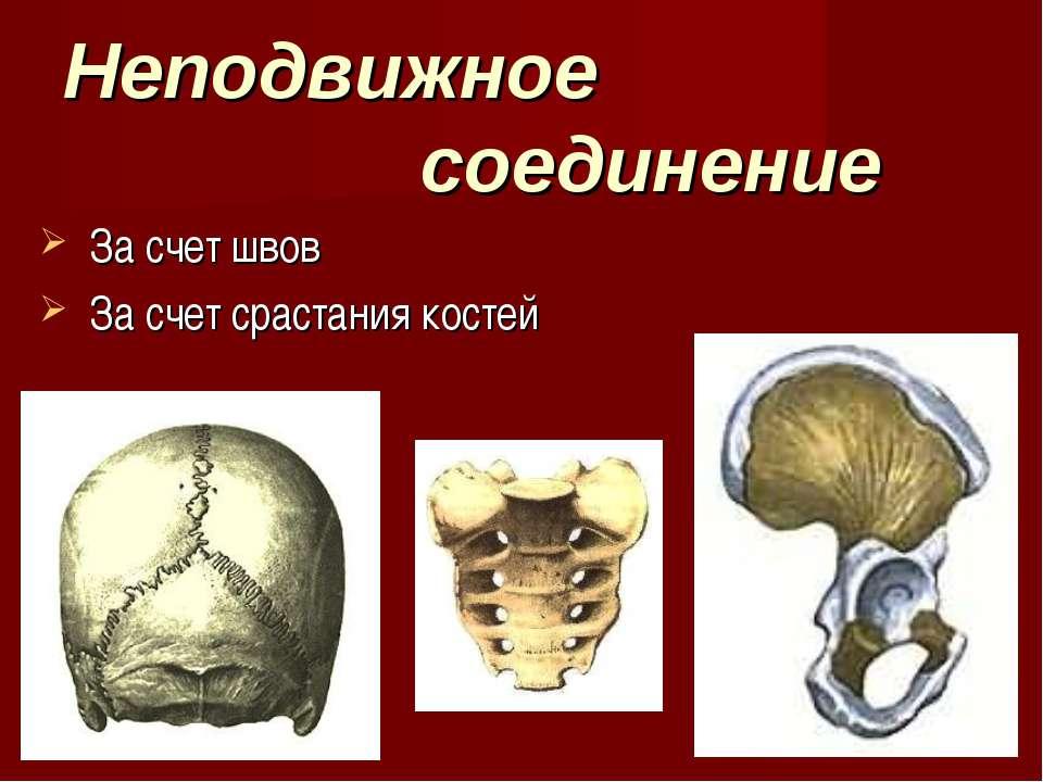 Неподвижное соединение За счет швов За счет срастания костей