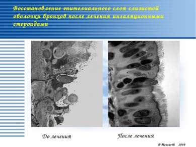 Восстановление эпителиального слоя слизистой оболочки бронхов после лечения и...