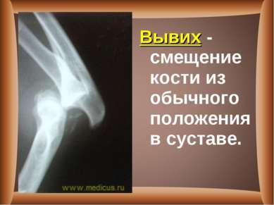 Вывих - смещение кости из обычного положения в суставе.
