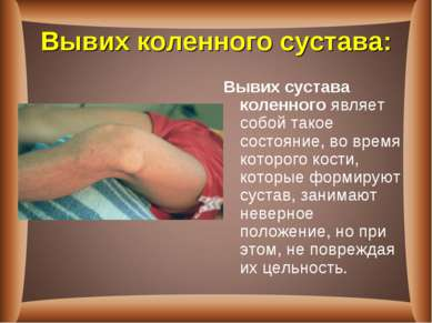 Вывих коленного сустава: Вывих сустава коленногоявляет собой такое состояние...