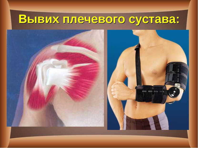 Вывих плечевого сустава: