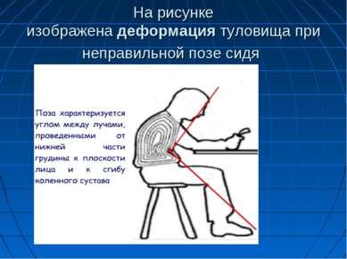 На рисунке изображенадеформациятуловища при неправильной позе сидя