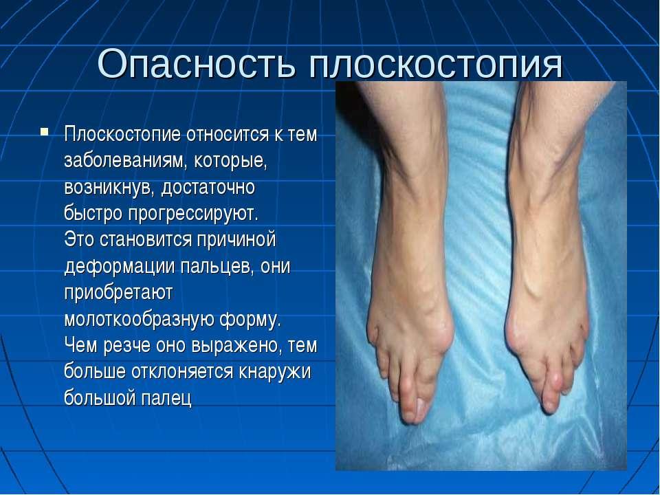Опасность плоскостопия Плоскостопие относится к тем заболеваниям, которые, во...