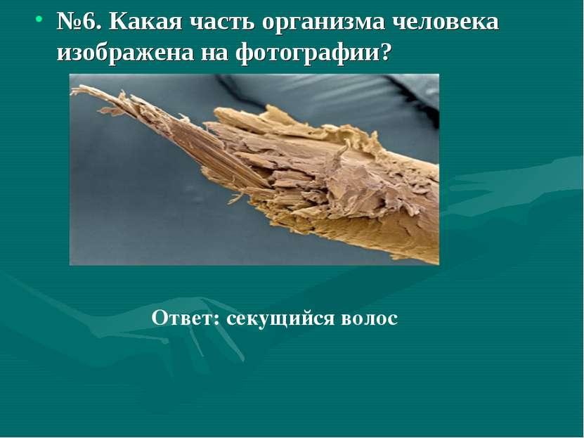 №6. Какая часть организма человека изображена на фотографии? Ответ: секущийся...