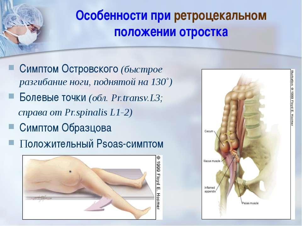Особенности при ретроцекальном положении отростка Симптом Островского (быстро...