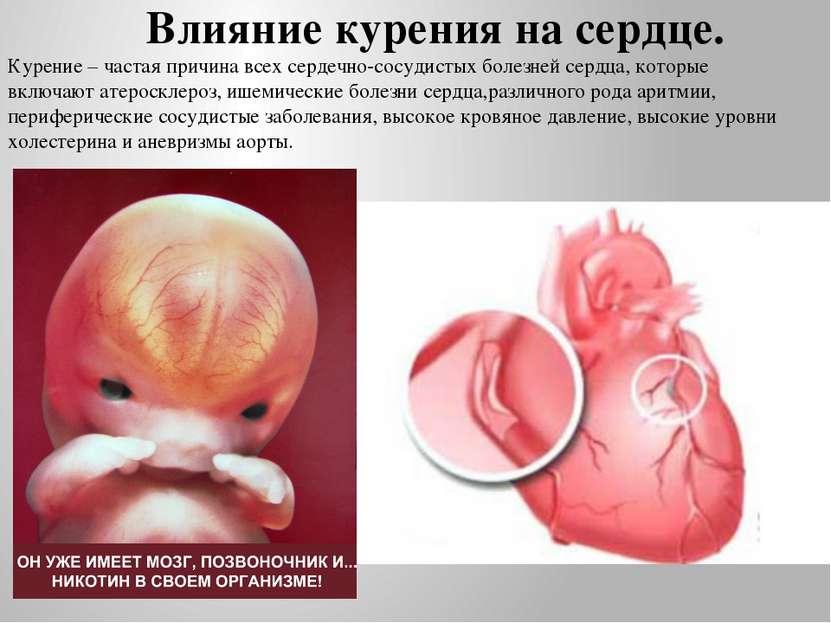 Влияние курения на сердце. Курение – частая причина всех сердечно-сосудистых ...