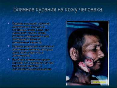 Влияние курения на кожу человека. Курение вызывает сужение кровеносных сосудо...