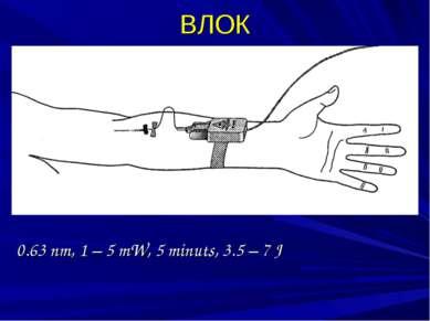 ВЛОК 0.63 nm, 1 – 5 mW, 5 minuts, 3.5 – 7 J