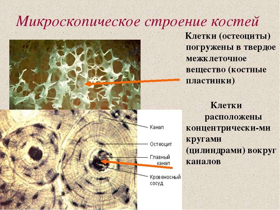Микроскопическое строение костей Клетки (остеоциты) погружены в твердое межкл...