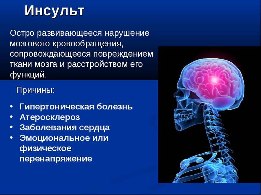 Инсульт Остро развивающееся нарушение мозгового кровообращения, сопровождающе...