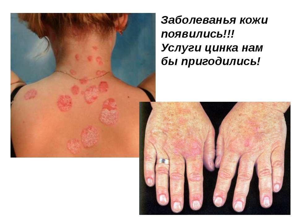 Заболеванья кожи появились!!! Услуги цинка нам бы пригодились!