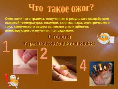 Ожог кожи - это травмы, полученная в результате воздействия высокой температу...