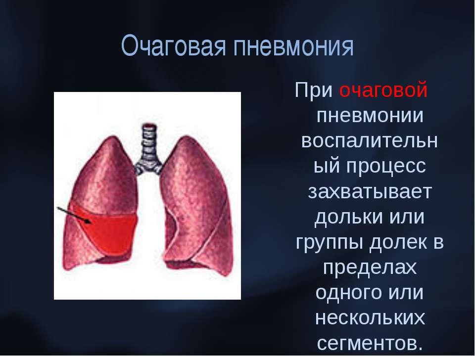 Очаговая пневмония При очаговой пневмонии воспалительный процесс захватывает ...
