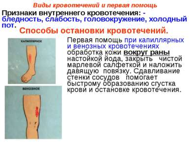 Виды кровотечений и первая помощь Первая помощь при капиллярных и венозных кр...