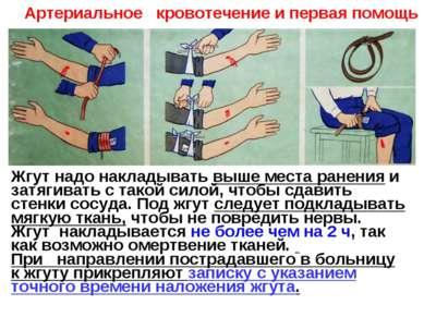 Жгут надо накладывать выше места ранения и затягивать с такой силой, чтобы сд...