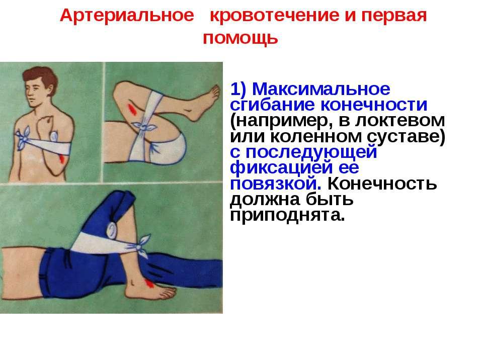 Артериальное кровотечение и первая помощь 1) Максимальное сгибание конечности...
