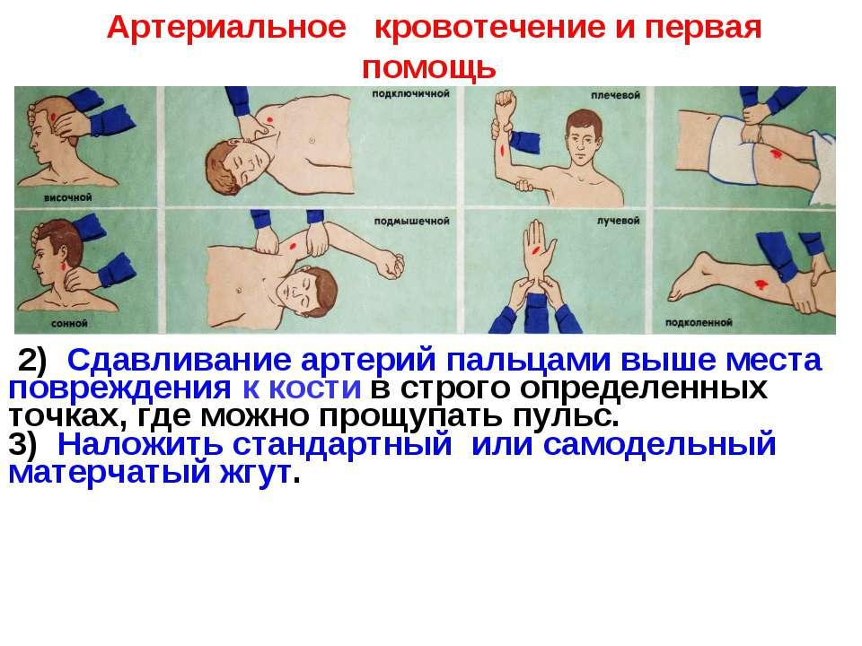 2) Сдавливание артерий пальцами выше места повреждения к кости в строго опред...