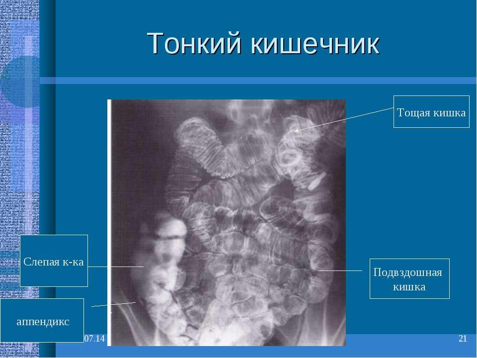 * * Тонкий кишечник Тощая кишка Подвздошная кишка Слепая к-ка аппендикс