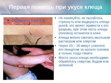 Первая помощь при укусе клеща Не паникуйте, не пытайтесь стряхнуть или выдерн...