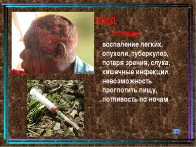 СПИД 3 стадия: воспаление легких, опухоли, туберкулез, потеря зрения, слуха, ...