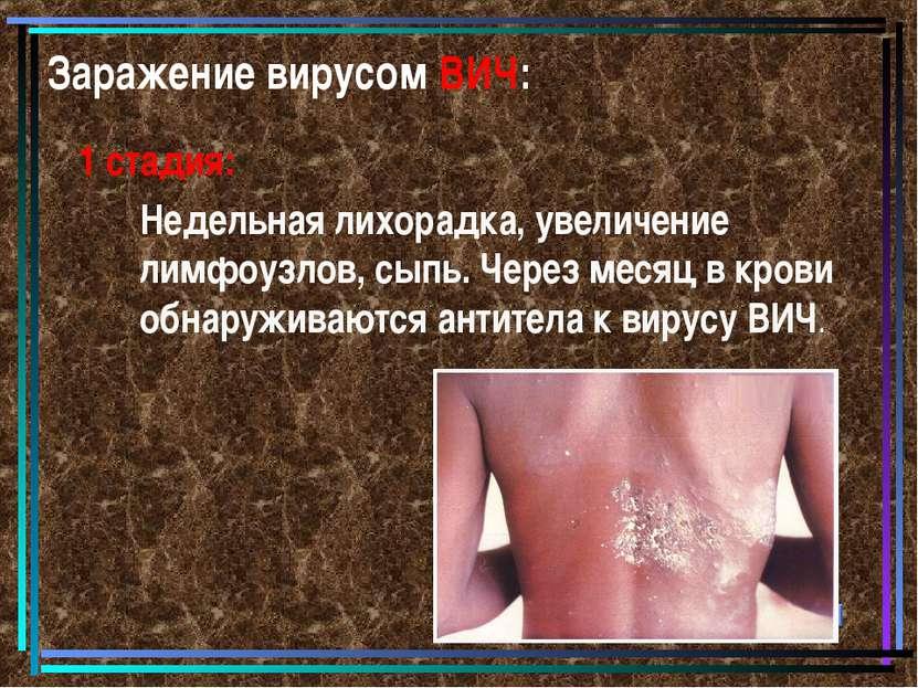 Заражение вирусом ВИЧ: 1 стадия: Недельная лихорадка, увеличение лимфоузлов, ...