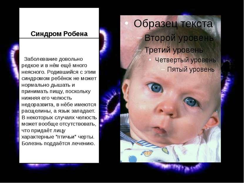 Синдром Робена  Заболевание довольно редкое и в нём ещё много неясного. Роди...
