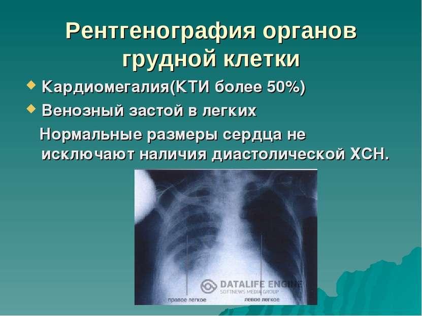 рентгенография органов грудной клетки в выходной в новосибирске чего была изготовлена