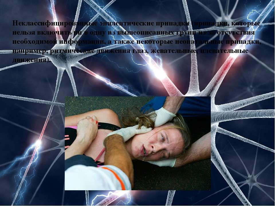 Неклассифицированные эпилептические припадки (припадки, которые нельзя включи...