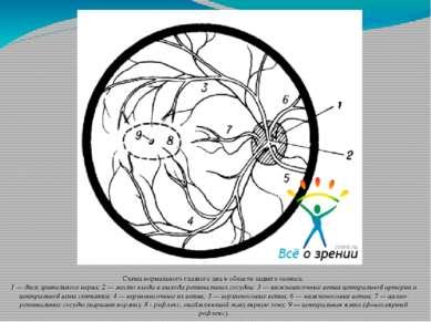Схема нормального глазного дна в области заднего полюса. 1 — диск зрительног...