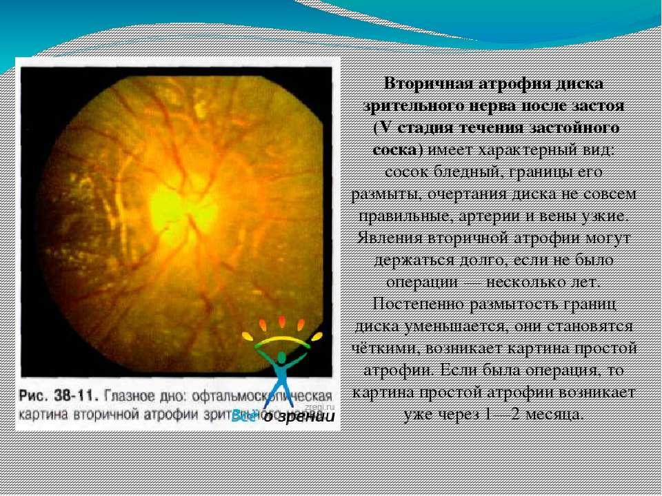 Вторичная атрофия диска зрительного нерва после застоя (V стадия течения заст...