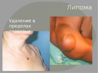 Липома Удаление в пределах здоровых тканей вместе с капсулой