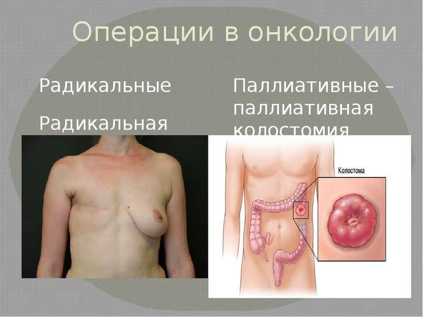 Операции в онкологии Радикальные Паллиативные – паллиативная колостомия Радик...